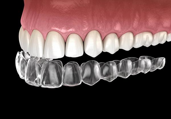 2020_CBM_teeth_600x420